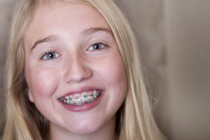 Orthodontist Athens - Invisalign invisible braces, braces for adults, braces for teens, braces for kids - Dr. Matt Brown - East Texas Orthodontics